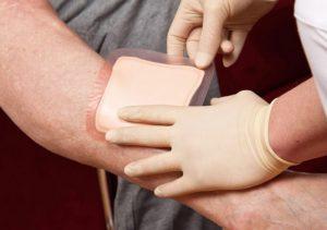 چسب زخم درمان کننده
