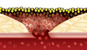 پودر و فیلم بند آورنده خون